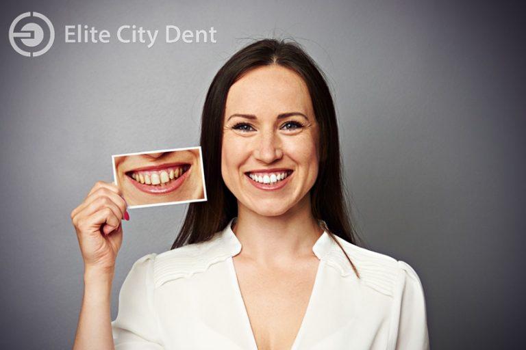 îngălbenirea dinților